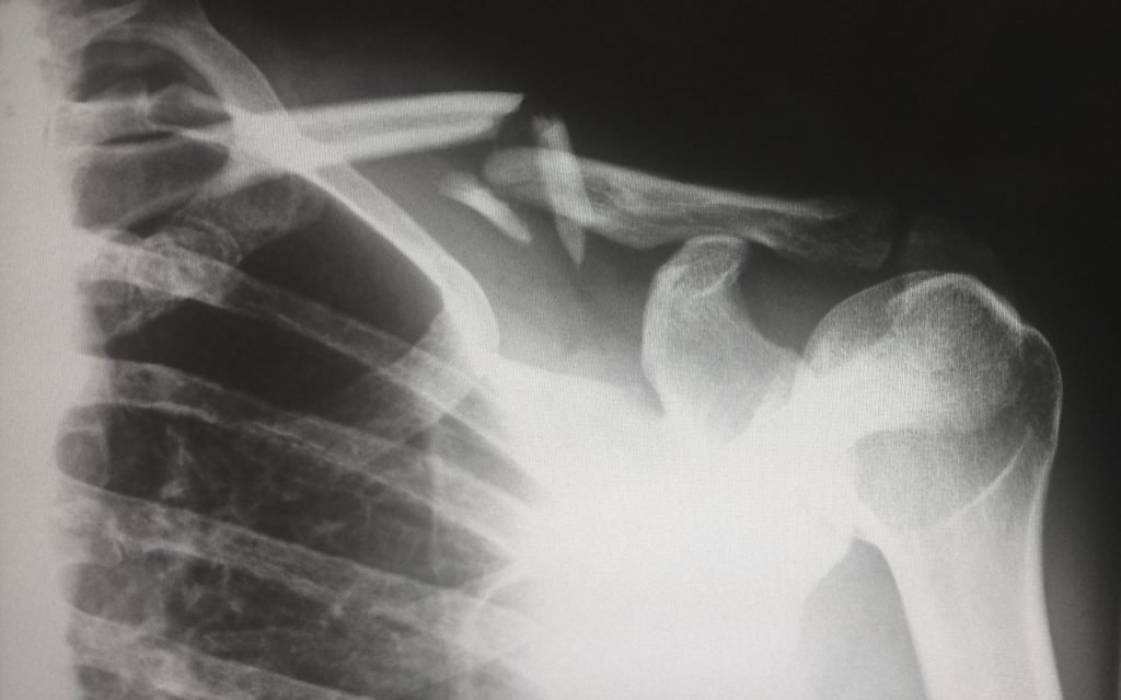 X-Ray showing fracture and no acute synovitis.