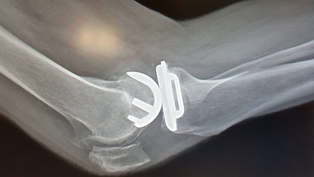 knee pain and knee replacement